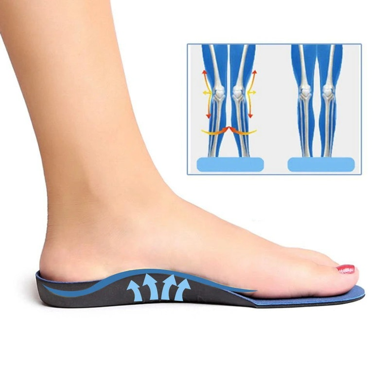 Insoles Arch Supports Orthotics Inserts - 1 Pair